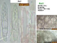 Pyrenopeziza-atrata-(Reynoutria)-170725-MCol-02JJ