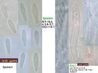 Pyrenopeziza-rubi-170625-TR-MCol-01JJ