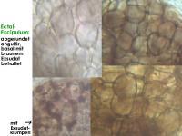 Pyrenopeziza-rubi-170625-TR-MCol-04JJ