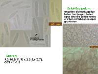 Pyrenopeziza-inapiculata-(Typha)-180708-TR-iw027-MCol-01JJ