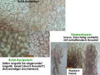 Pyrenopeziza-rubi-180722-iw028-MCol-03JJ