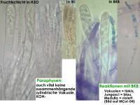 Hymenoscyphus-imberbis-180701-iw025-MCol-04JJ