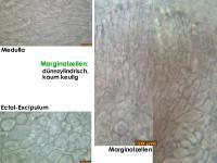 Hymenoscyphus-imberbis-180701-iw025-MCol-05JJ