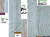 Brunnipila-fuscescens-180421-YGS-iw014-MCol-01JJ