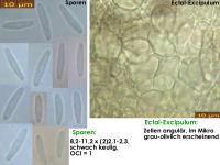 Pyrenopeziza-depressuloides-cf-(Cirsium)-180723-iw029-MCol-01JJ