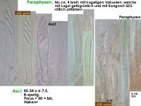 Pyrenopeziza-depressuloides-cf-(Cirsium)-180723-iw029-MCol-02JJ