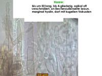 Pyrenopeziza-depressuloides-cf-(Cirsium)-180723-MCol-03JJ