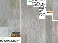 Pyrenopeziza-typhicola-180721-TR-MCol-01JJ