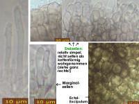 Pyrenopeziza-typhicola-180721-TR-MCol-02JJ