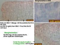 Orbilia-rectispora-180803-MCol-05JJ