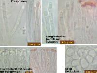 Orbilia-vinosa-170715-MCol-02JJ