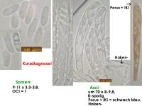 Hymenoscyphus-vernus-180420-iw010-MCol-01JJ