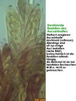 Ascusinhalt-dextrinoid-180810JJ