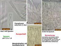Orbilia-sarraziniana-180920-MCol-01JJ