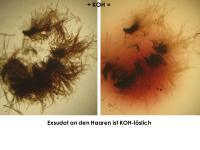 Perrotia-flammea-cf-(Sp20-24)-181010-BHanff-iw039-MCol-04JJ
