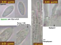 Hymenoscyphus-imberbis-SvPo-180920-MCol-01JJ