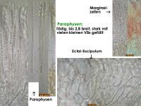 Bryoscyphus-phascoides-(croziers-)-181028-iw040-MCol-03JJ