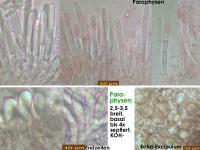 Mollisia-caricina-cf-(KOH-_Typha)-180909-TR-IW035-TU134286-MCol-03JJ