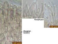 Cistella-chlorosticta-181028-iw041-MCol-03JJ