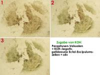 Mollisia-callunae-181027-TR-MCol-06JJ