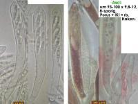 Lachnum-luteodiscum-181102-TR-iw042-MCol-02JJ