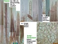 Trichopezizella-(OCI=5_Schoenoplectus)-181102-TR-iw043-MCol-03JJ