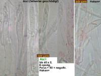 Pyrenopeziza-caespiticia-181117-iw045-MCol-02JJ