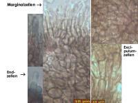 Pyrenopeziza-caespiticia-181117-iw045-MCol-04JJ