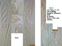 Allophylaria-macrospora-181130-iw048-MCol-02JJ