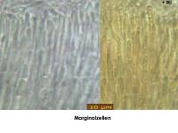 Bisporella-citrina-181125-iw046-MCol-06JJ