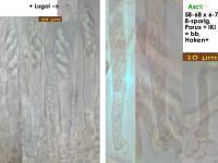 Mollisia-olivaceocinerea-181125-iw047-MCol-02JJ