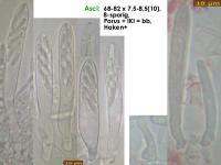 Mollisia-fusca-cf-(KOH-weak_sp3broad)-181204-iw050-MCol-02JJ