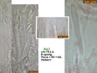 Mollisia-pseudofusca-181206-iw051-MCol-02JJ