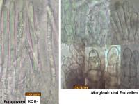 Mollisia-pseudofusca-181206-iw051-MCol-03JJ
