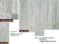 Orbilia-dryadum-170615-FPr-FP390-MCol-01JJ