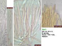 Lachnum-brevipilosum-170205-FPr-fp340-MCol-02JJ