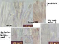 Orbilia-aristata-131205-MCol-02JJ