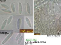Olla-scrupulosa-181223-iw052-MCol-01JJ
