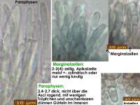 Pyrenopeziza-spec-(dark-medulla-Solidago)-181230-TR-iw053-MCol-03JJ