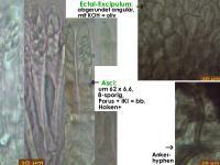 Mollisia-olivaceocinerea-(Betula)-181223-TR-MCol-02JJ