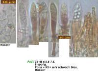 Pyrenopeziza-spec-(callycellinoid-Salix)-190211-MCol-02JJ