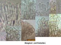 Pyrenopeziza-spec-(callycellinoid-Salix)-190211-MCol-04JJ
