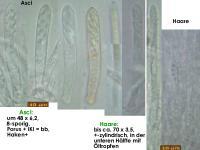 Lachnum-conicola-180421-IW018-TU104976-MCol-02JJ