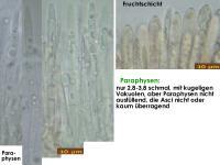Lachnum-conicola-180421-IW018-TU104976-MCol-03JJ