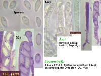 Orbilia-eucalypti-130222-USp-MCol-01JJ