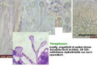 Orbilia-eucalypti-130222-USp-MCol-02JJ