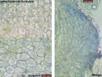 Orbilia-eucalypti-130222-USp-MCol-03JJ
