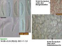 Calycellina-lachnobrachya-191011-MCol-01JJ