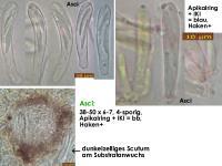 Calycellina-lachnobrachya-191011-MCol-02JJ