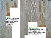 Hymenoscyphus-imberbis-(IKI-)-190517-SteBo-MCol-02JJ